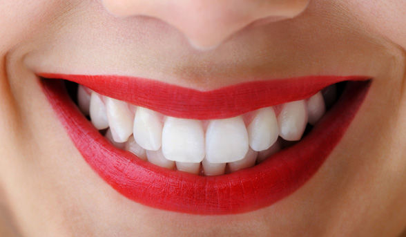 Teeth Whitening Happy Smile, Port St Lucie